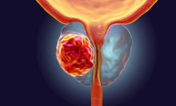 Prostate Cancer: Looking Out for the Signs