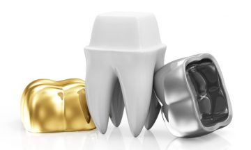 Dental Implants Are Considered a Part of Oral Surgery