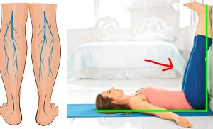 How Important Is The Proper Care Of Your Legs