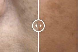 The World's Fastest Eraser Laser For Asian Skin