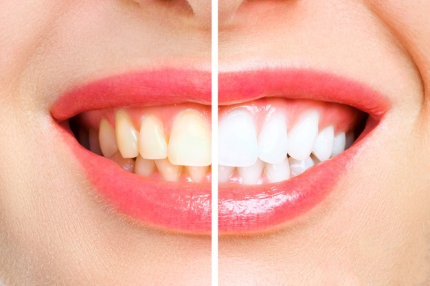 What Is Teeth Whitening Or Bleaching, And How Is It Done?